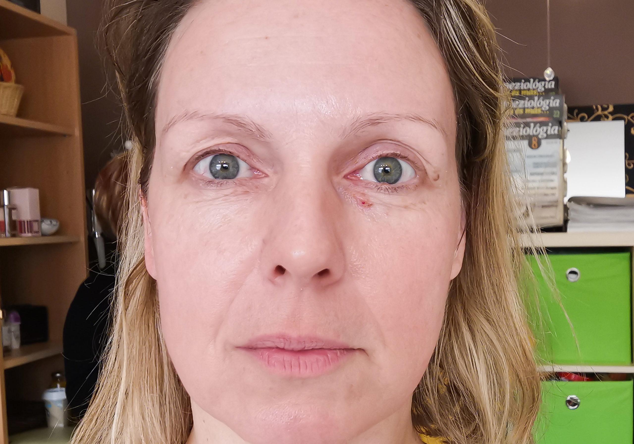 női arc smink nélkül, kezelés után